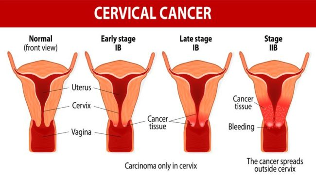 Precancerous conditions of the cervix